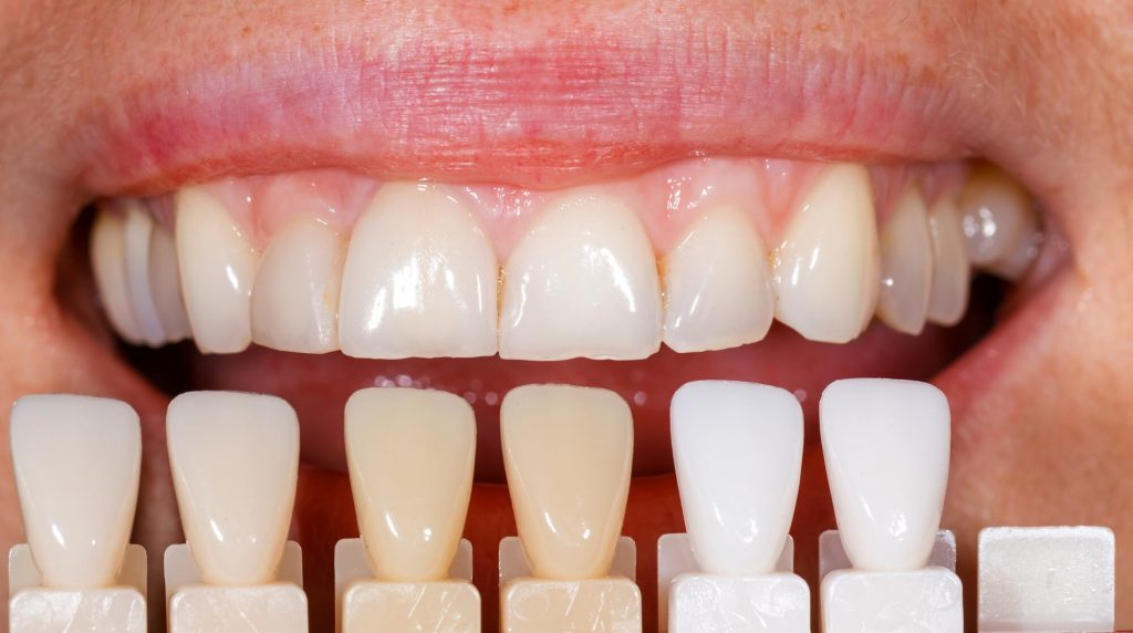 What are the benefits of veneers in Charleston, SC?
