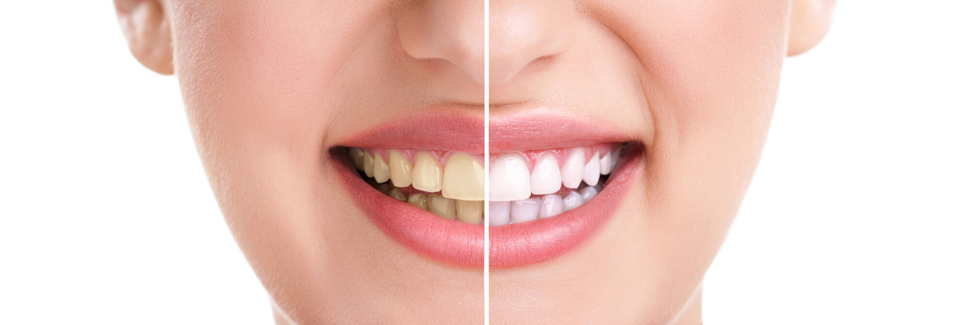 Where can I get Teeth Whitening Charleston SC?