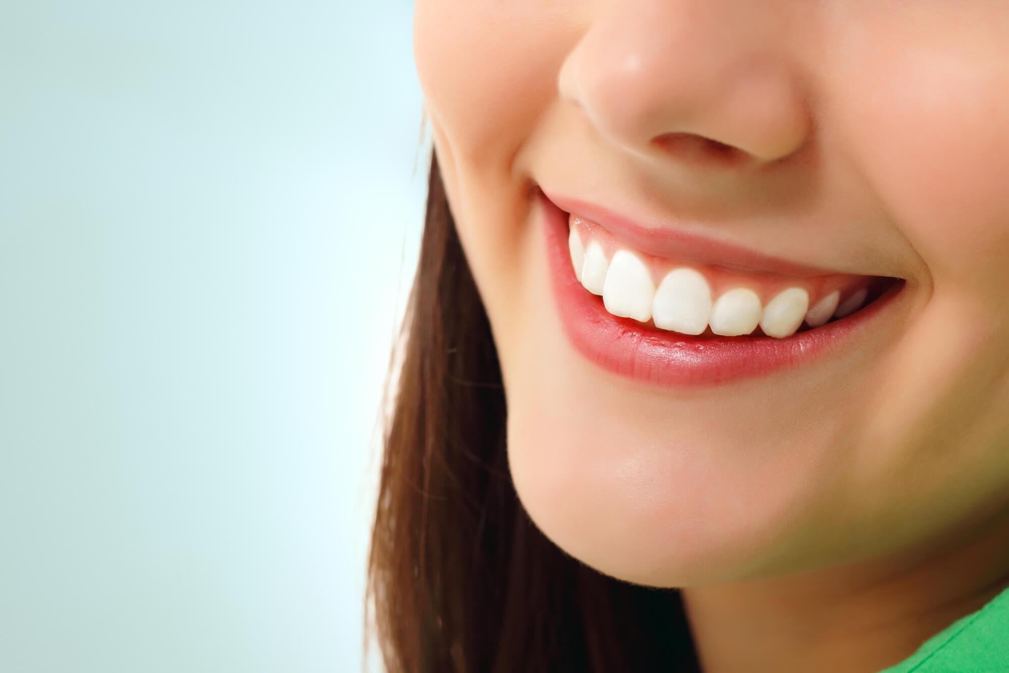 smile teeth whitening charleston sc