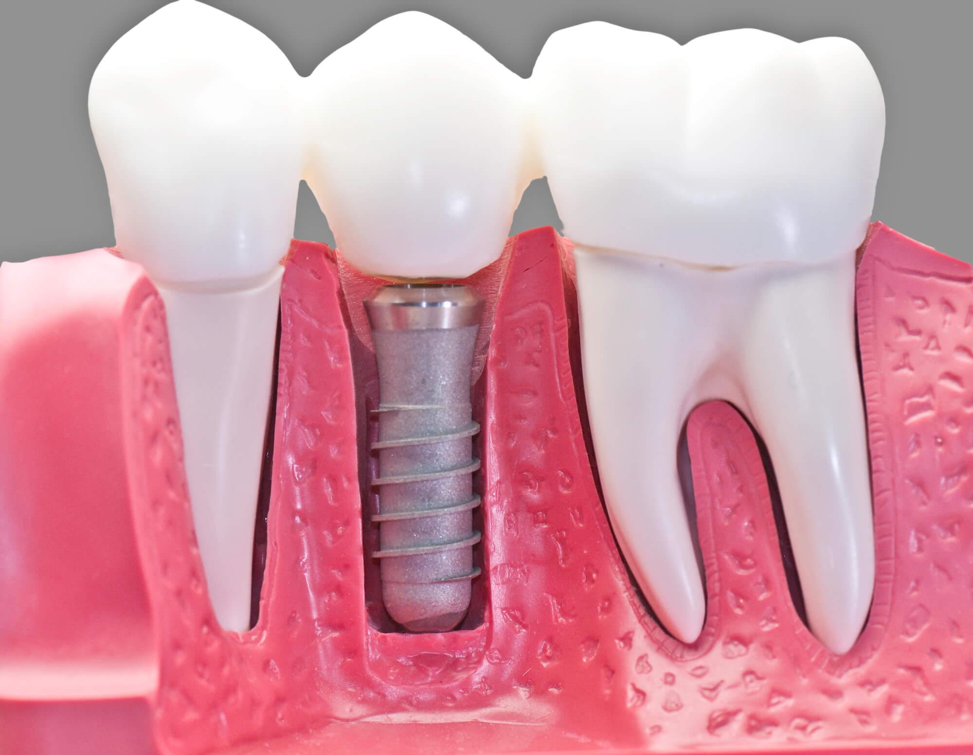 Dental Implants North Charleston SC