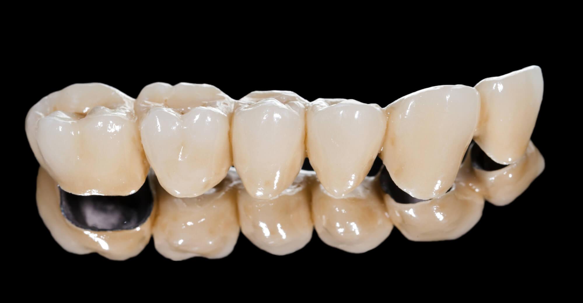 restoration for Restorative Dentistry Charleston SC