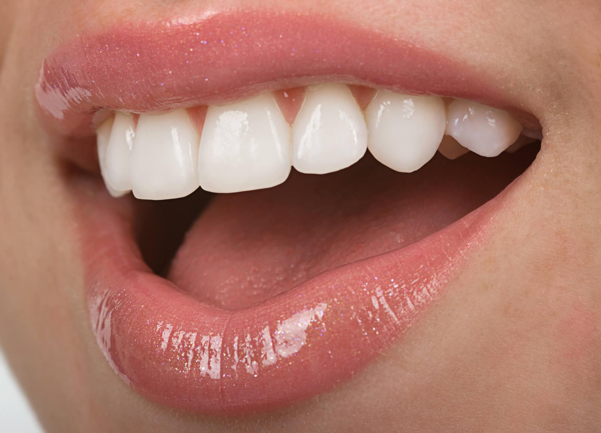 bright white smile after Teeth Whitening Charleston SC
